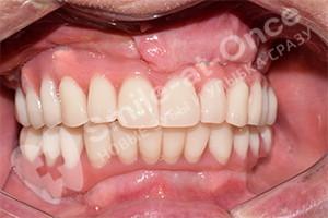 Восстановление зубов на 2 челюстях