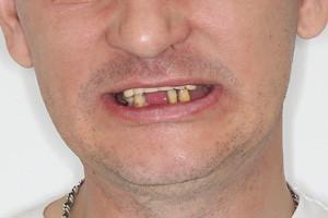 All-on-4 для нижней челюсти и съемный протез для верхней - до