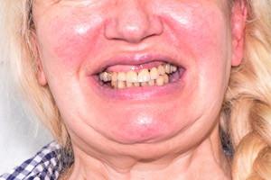 Протезирование Все-на-4 на верхней и нижней челюсти