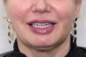 Протезирование Все-на-4 на верхней и нижней челюсти, фото до
