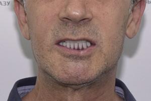 Восстановление зубов методом All-on-4 - до