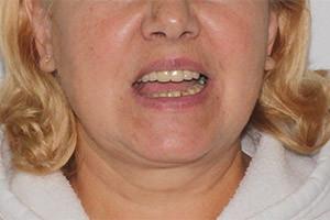 Протезирование All-on-6 на нижней челюсти