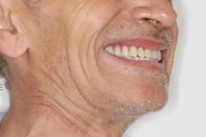 Новые зубы за 3 дня. Базальная имплантация