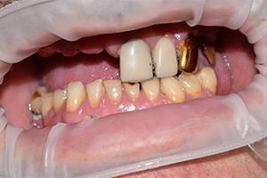 Имплантация и протезирование верхней челюсти