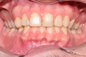 Профессиональная гигиена и отбеливание зубов, фото до