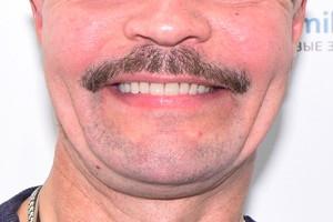 Комбинированная имплантация для верхней челюсти, фото до