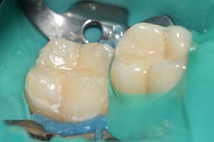 Лечение кариеса жевательных зубов, фото до
