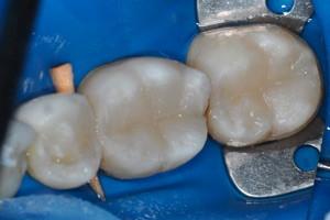 Лечение кариеса трех жевательных зубов, фото до