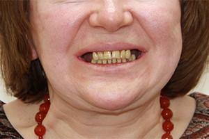 Имплантация обеих челюстей