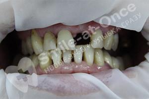 Разрушение зубов верхней челюсти