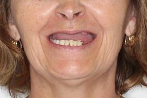 """Несъемное протезирование All-on-4 и съемный протез для """"новой улыбки"""""""