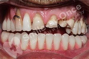 Полное восстановление зубов нижней челюсти