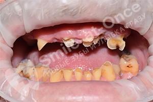 Однофазная имплантация зубов на 2-х челюстях