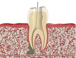 Киста и гранулема зуба