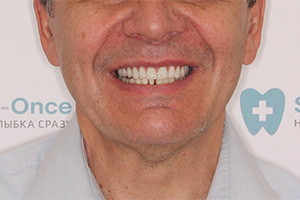 Имплантация верхней челюсти и жевательных зубов