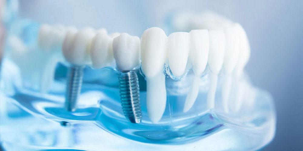 Разбор клинического случая о восстановлении зубов