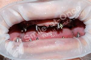 Имплантация при полной адентии зубов