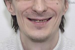 Протезирование зубов All-on-6 - до