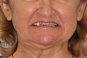 Имплантация Basal Complex на 2х челюстях