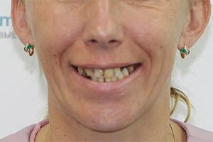 Восстановление зубов комплексом базальных имплантов