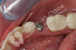 Установка коронки на зубной имплант