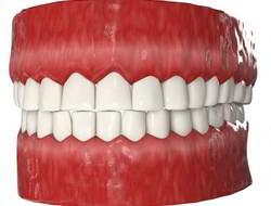 Короткие зубы