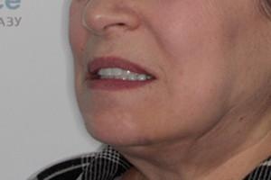 Полное протезирование зубов по технологии ALL-ON-6