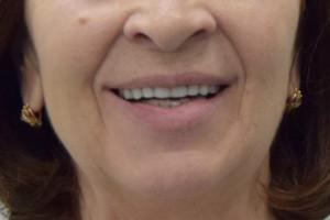 Протезирование All-on-4 от Nobel для верхней челюсти