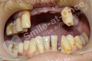 Одномоментная имплантация верхней челюсти