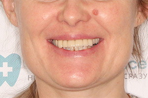 Замена зубных протезов