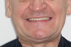 All-on-6 для нижней челюсти  All-on-6 с имплантами Zygoma для верхней челюсти, фото до
