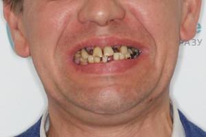 Basal Complex для нижней челюсти при пародонтозе - до