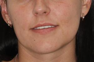 All-on-4 с постоянным протезом для верхней и нижней челюсти - до