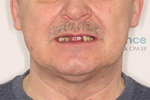 Полное отсутствие зубов на верхней и частичное нижней челюсти