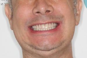 Протезирование All-on-6 для восстановления зубов на обеих челюстях