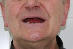 Восстанавливаем зубы, протоколы All-on-4 и All-on-6