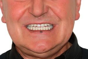 Восстанавливаем зубы, протоколы All-on-4 и All-on-6 - до