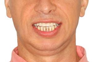 Восстановление верхней челюсти на имплантах Oneway Biomed - до