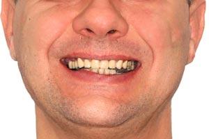Базальная имплантация верхней челюсти при острой атрофии костной ткани