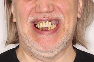Восстановление всех зубов за 3 дня