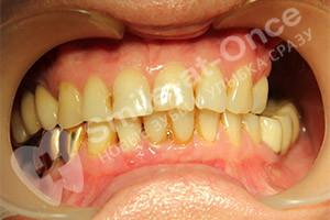 Восстановление зубов нижней челюсти и концевой дефект верхней