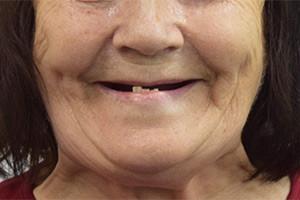 All-on-6 для обеих челюстей