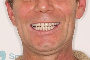 Замена зубных мостов (Однофазная имплантация)