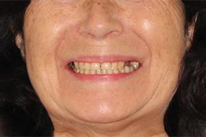 Базальная имплантация жевательных зубов