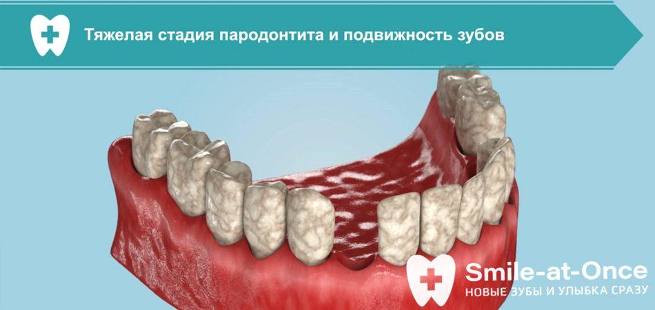 Видео: лечение пародонтоза и пародонтита имплантами за 3 дня
