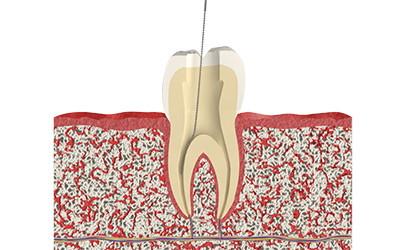 Лечение пульпита 2-х канального зуба