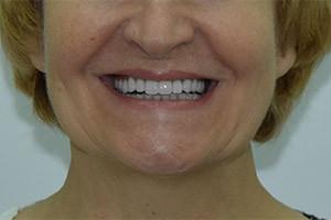 Отсутствие зубов верхней челюсти