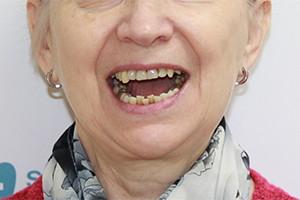 Восстановление разрушенных зубов имплантацией