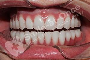 Восстановление всех зубов Basal Complex