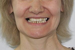 Базальная имплантация сегмента зубов